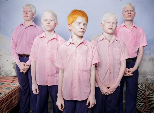 Albinos Ciegos en el Oste de Bengal