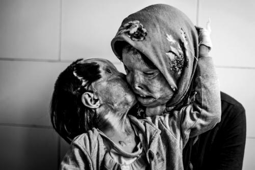 Madre e Hija de 3 años - victimas de ataque acido